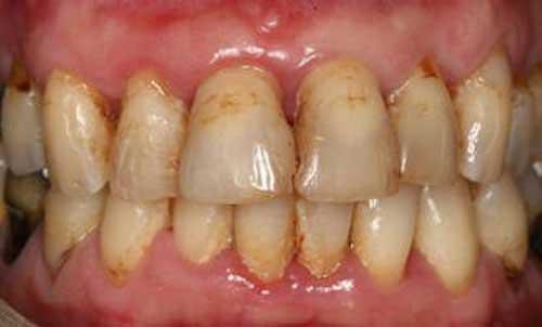 تصویر عوارض ناس بر روی دندان ها